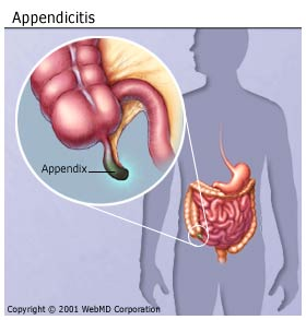 digestive_diseases_appendicitis_appendix